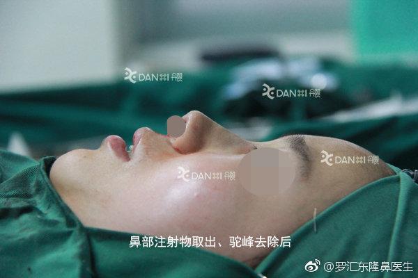 北京哪位医生擅长做鼻部注射物取出手术?鼻部微晶瓷,骨粉,奥美定取出专家