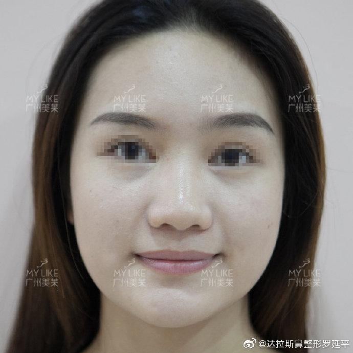 广州罗延平和欧阳春哪个隆鼻技术好?欧阳春和罗延平隆鼻&鼻修复案例预约