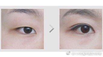 八大处双眼皮&双眼皮修复最好的专家:刘珍君(预约案例评价)