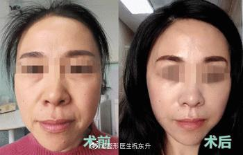 中国最好的面部提升专家:祝东升(案例预约)五层面部提升怎么样?