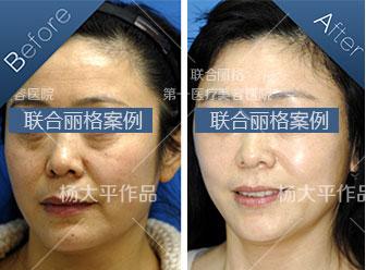 北京杨大平和穆宝安谁做面部提升效果好?