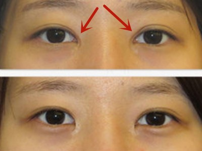中国最厉害的顶级双眼皮修复专家:曹仁昌和洪星杓(简介案例预约)双眼皮修复谁厉害?