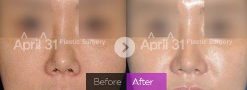韩国高难度鼻修复顶级鼻部整形专家:金载勋(案例预约价格)鼻修复技术怎么样?
