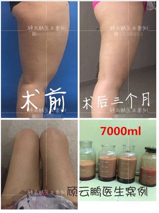 中国最好的大腿吸脂专家:北京八大处顾云鹏大腿吸脂效果好不好?