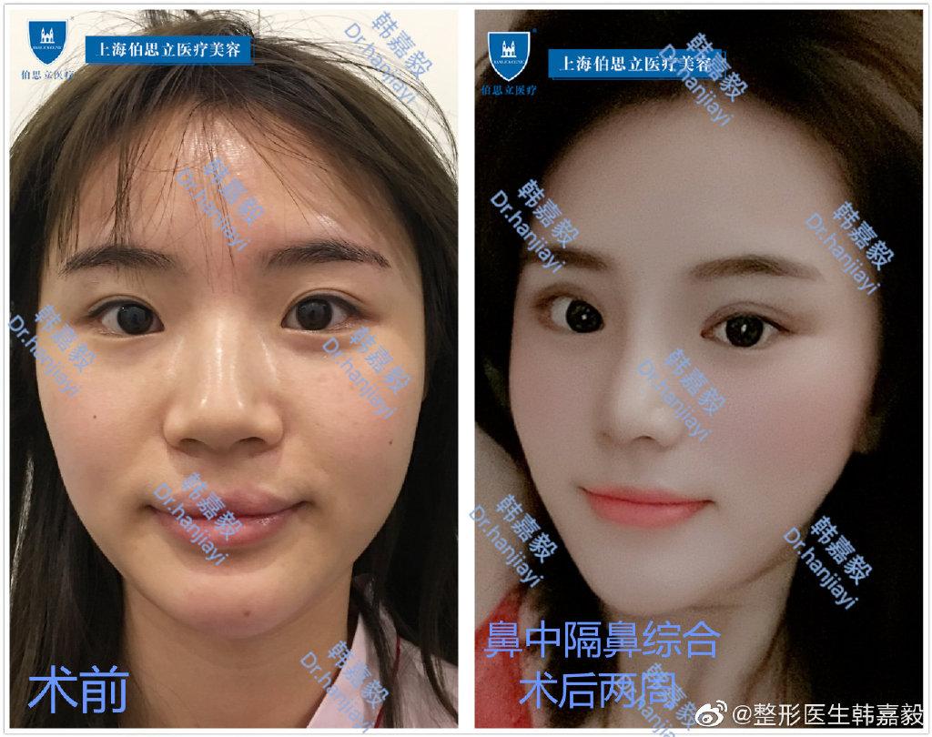 上海喜美王会勇与百达丽韩嘉毅哪个做鼻综合效果好?