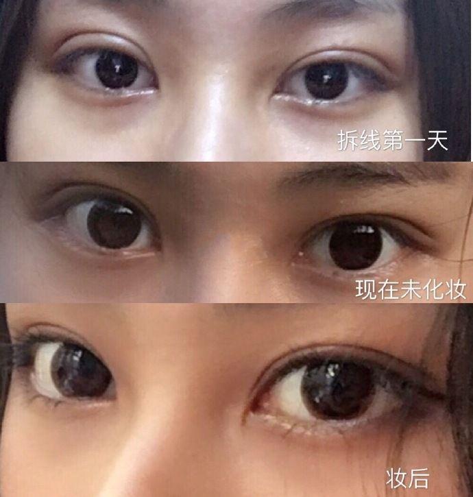 最好的眼修复专家推荐:八大处于晓波和上海九院朱惠敏哪个眼修复厉害?