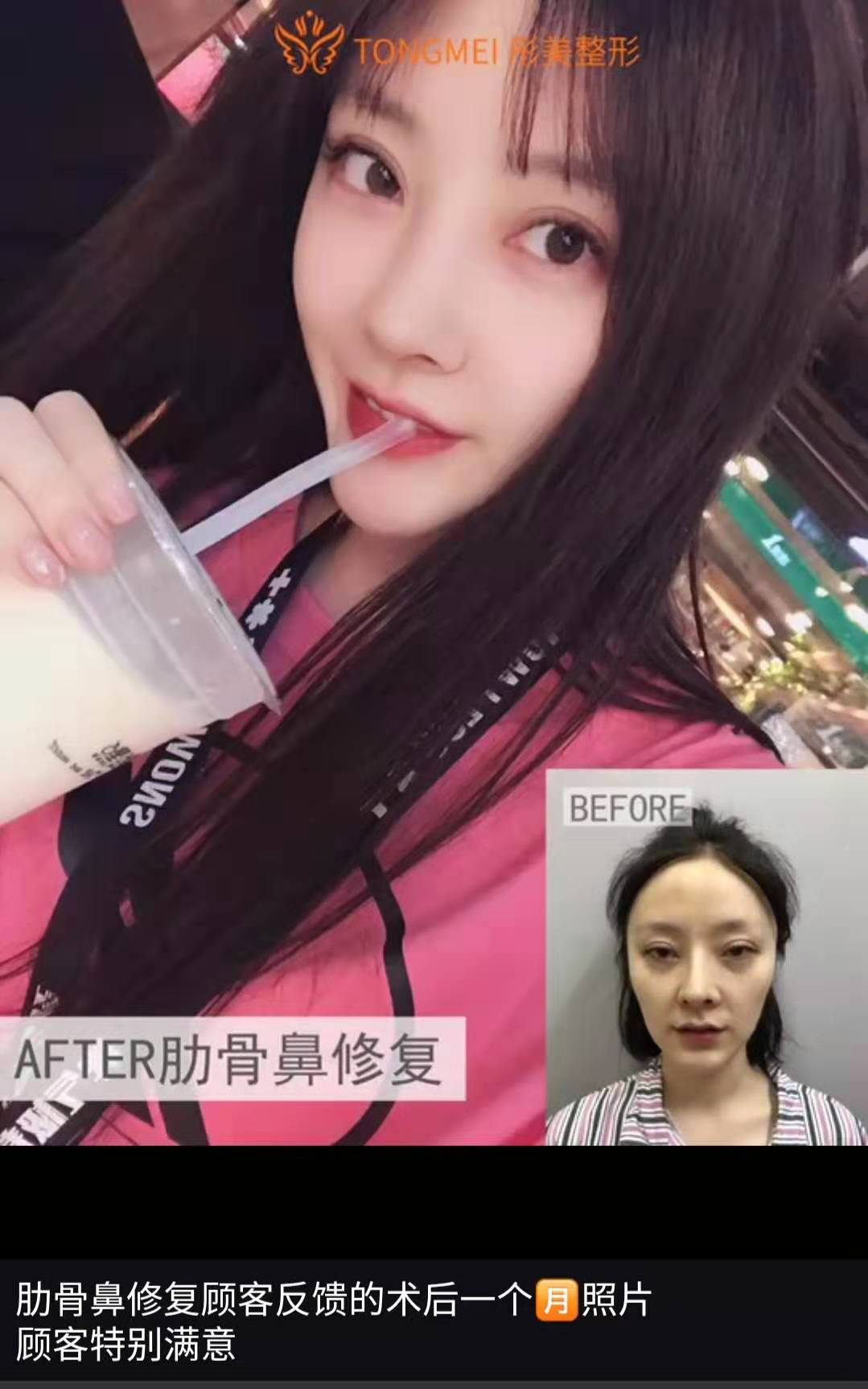 中国顶级鼻修复专家:北京刘彦军李劲良王军和李长赋哪个做鼻修复技术好?