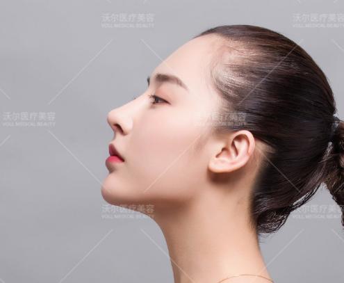 国内鼻尖修复专家:刘彦军鼻中隔软骨垫鼻尖、王军耳软骨垫鼻尖哪个好?