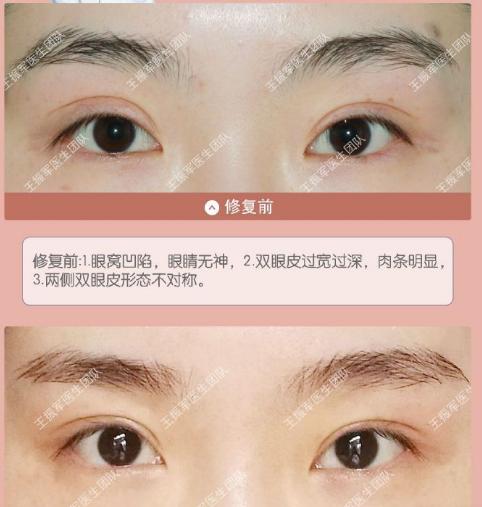 中国知名双眼皮修复专家:张冰洁和王振军哪个做双眼皮修复好?