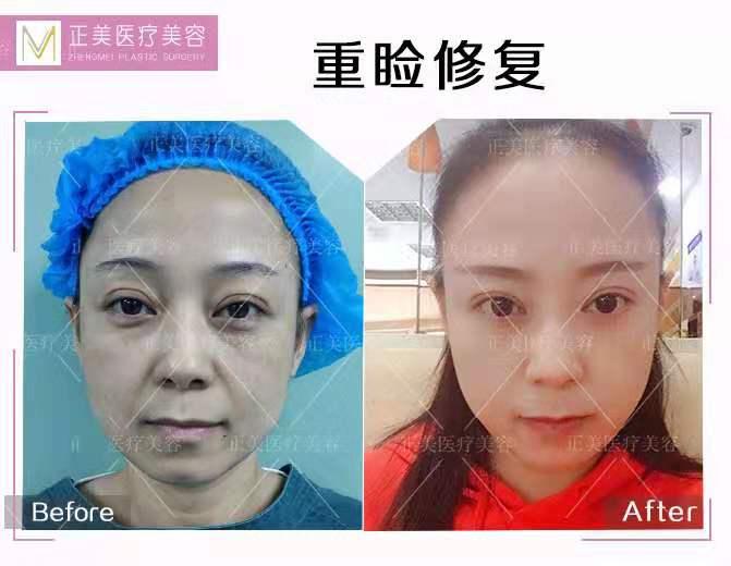 中国最好的顶尖双眼皮修复专家:郑永生和王振军哪个修复双眼皮好?