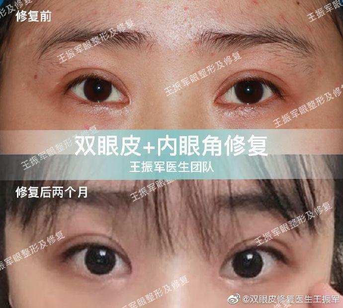 王振军双眼皮修复案例
