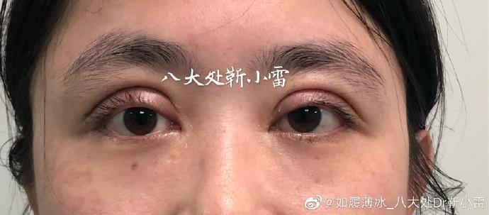 北京双眼皮修复最好的专家:王世勇和靳小雷(案例预约价格)双眼皮修复谁厉害?