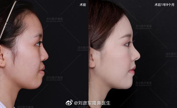 全国最好的隆鼻修复专家:鼻修复专家王会勇和刘彦军哪个厉害?