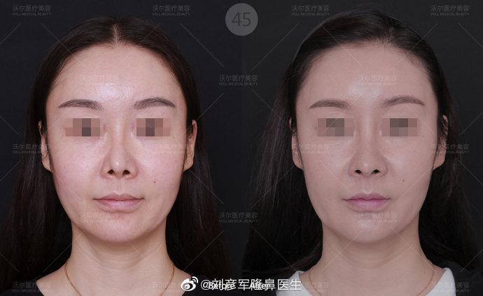 北京鼻修复最好的权威专家有哪些?刘暾刘彦军巫文云王军隆鼻修复哪个好?
