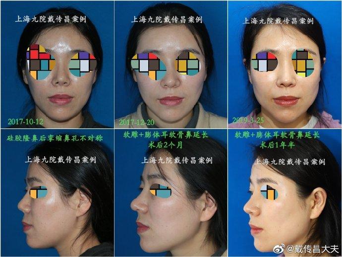 上海九院隆鼻修复专家哪个最好?戴传昌陈付国李圣利王涛鼻修复谁厉害?