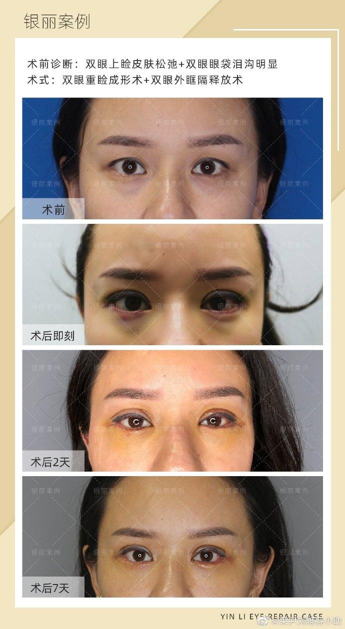 中国最厉害的双眼皮修复专家:刘辅容和田国静哪个眼修复技术厉害?