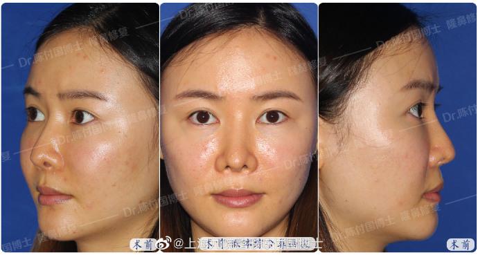 上海九院戴传昌、陈付国、王会勇鼻子隆鼻鼻修复谁做得最好?