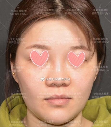 北京鼻综合最出名的专家:李劲良和李长赋哪个隆鼻鼻综合做得好?