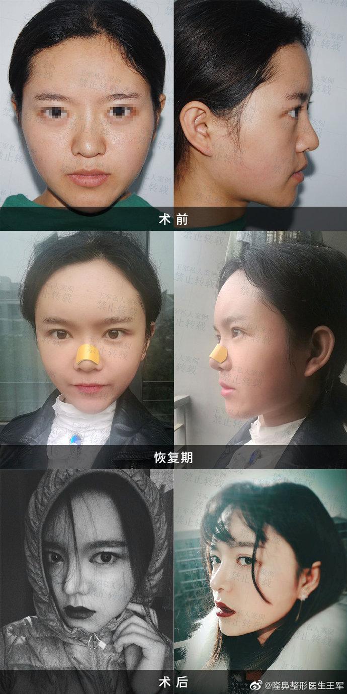 北京鼻修复权威专家有哪些?李战强刘彦军巫文云王军鼻修复谁最厉害?