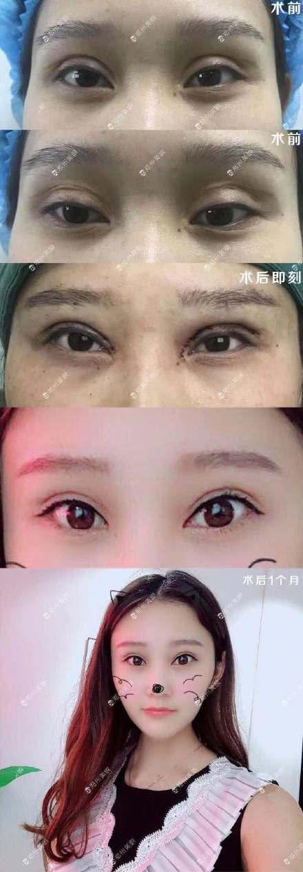 中国顶尖双眼皮修复专家:潘贰和田国静哪个修复双眼皮技术好?