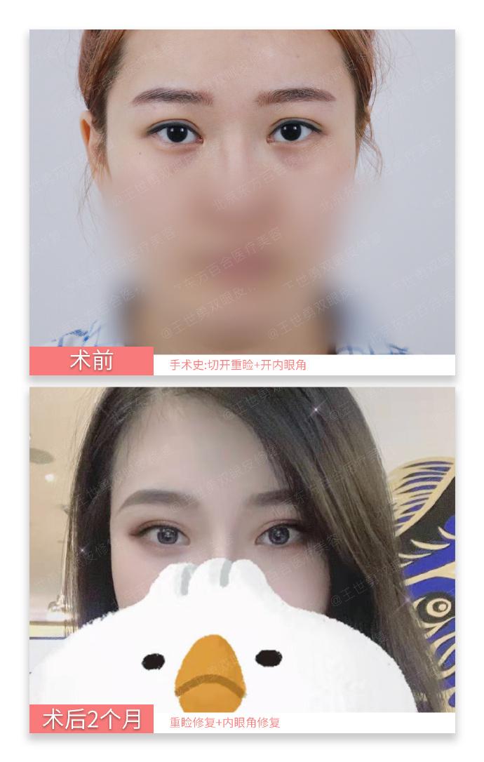 国内最好的修复双眼皮专家:王世勇和田国静哪个双眼皮修复技术好?