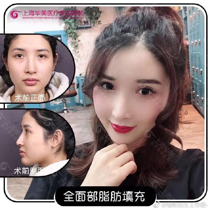 上海脂肪面部填充专家:百达丽刘李娜和上海华美王荣锡全面部填充谁更好?