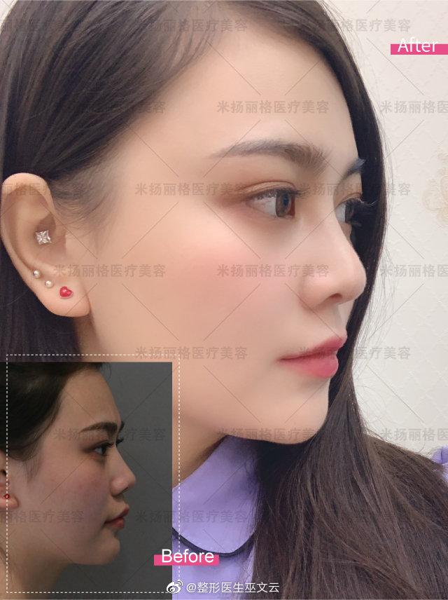 北京巫文云鼻修复到底好不好?巫文云做鼻子技术好吗?