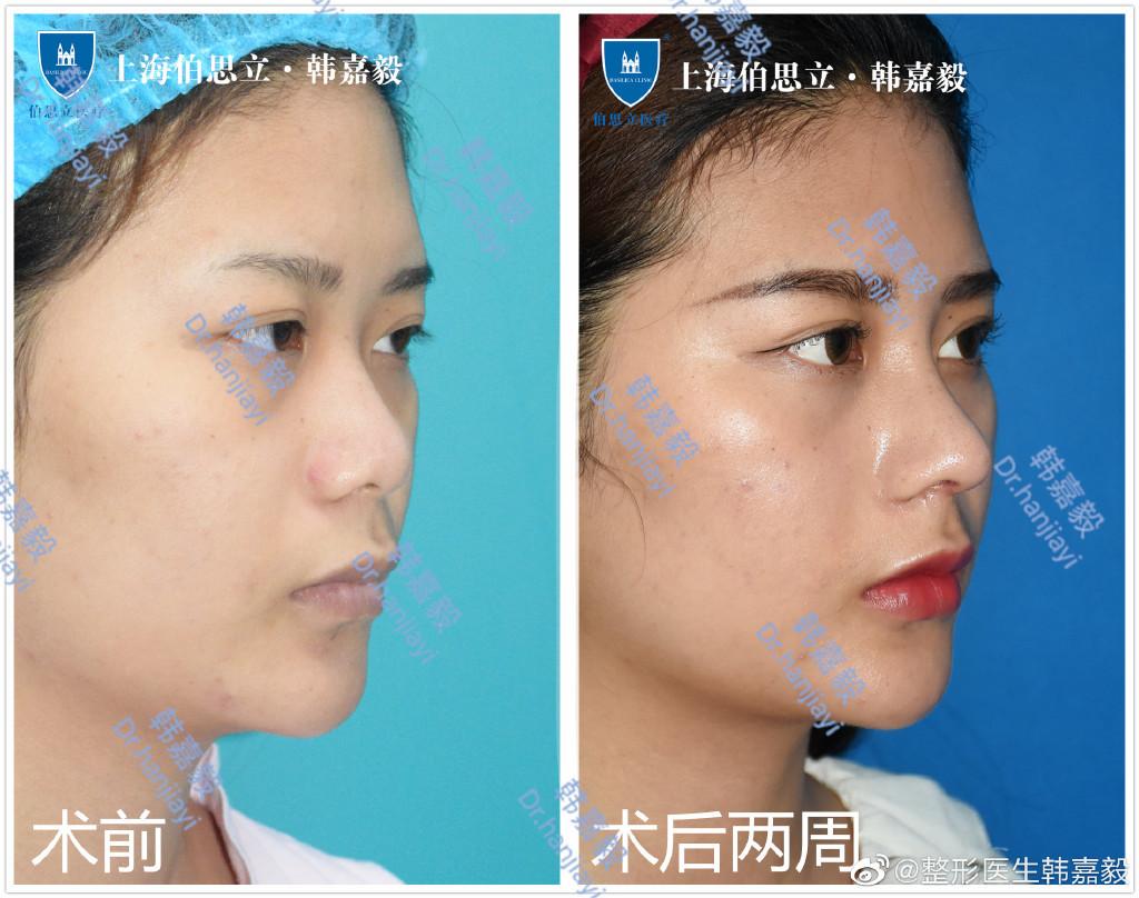 上海隆鼻专家:韩嘉毅和谢卫国哪个做小翘鼻好?
