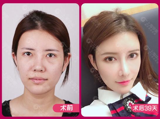 上海脂肪填充整形医院哪个好?上海九院伊莱美百达丽艺星美莱谁最好?