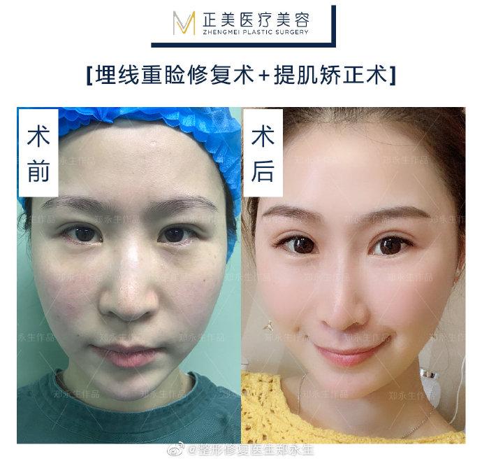 国内双眼皮修复最好的专家:王世勇和郑永生(预约)谁做修复双眼皮好?