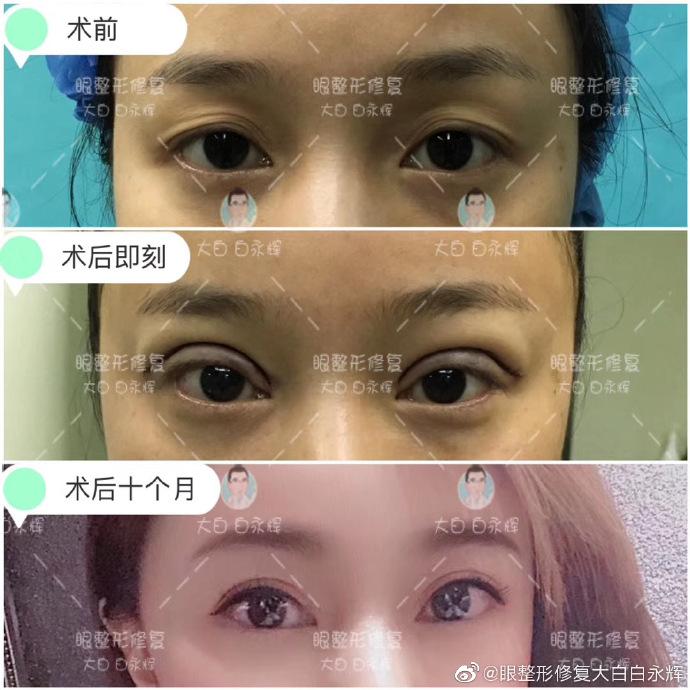 国内最好的修复双眼皮医生:双眼皮修复白永辉和刘志刚(预约)哪个手艺高?