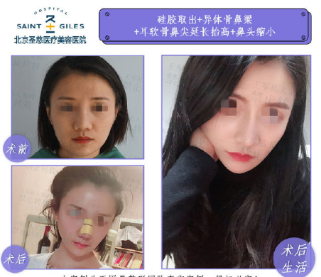 北京做鼻子最好的医生有哪些?王军和李劲良(预约)隆鼻技术怎么样?