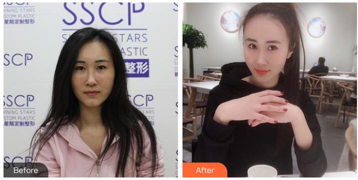 北京鼻综合十大专家都有哪些?北京隆鼻医生前十名排名