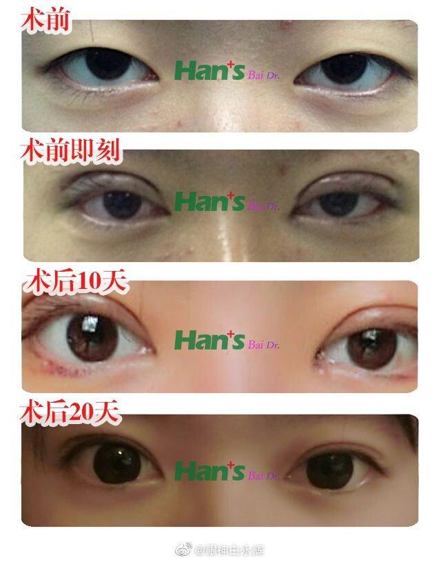 北京做双眼皮最好的专家是谁?韩新鸣王太玲薛红宇刘风卓白永辉李鹏超谁好?