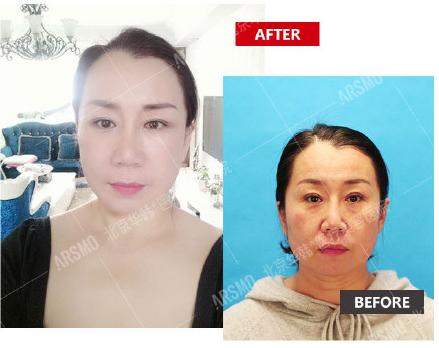 全脸提升最好的医生:面部拉皮手术柳民熙和杨大平(预约)谁的医术更高?