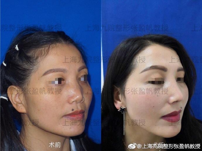 上海九院张盈帆和祝联(预约)隆鼻修复哪个更好?