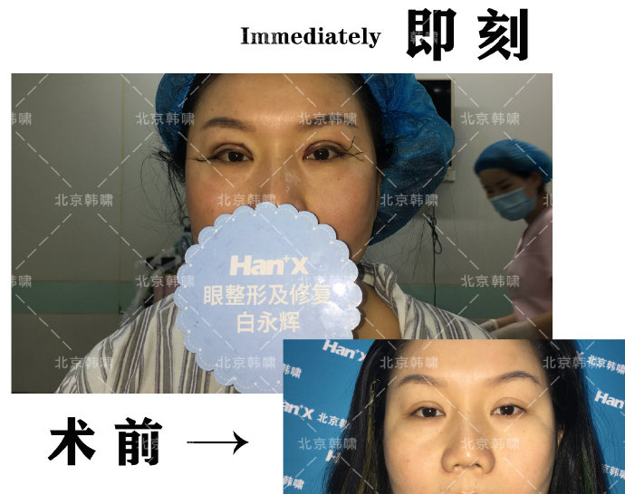 国内顶级双眼皮修复专家有哪些?韩勋白永辉王世勇朱晓峰薛红宇谁口碑好?