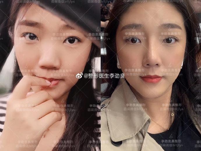 北京鼻修復巫文云李勁良哪個修復鼻子(隆鼻修復)更熟練?