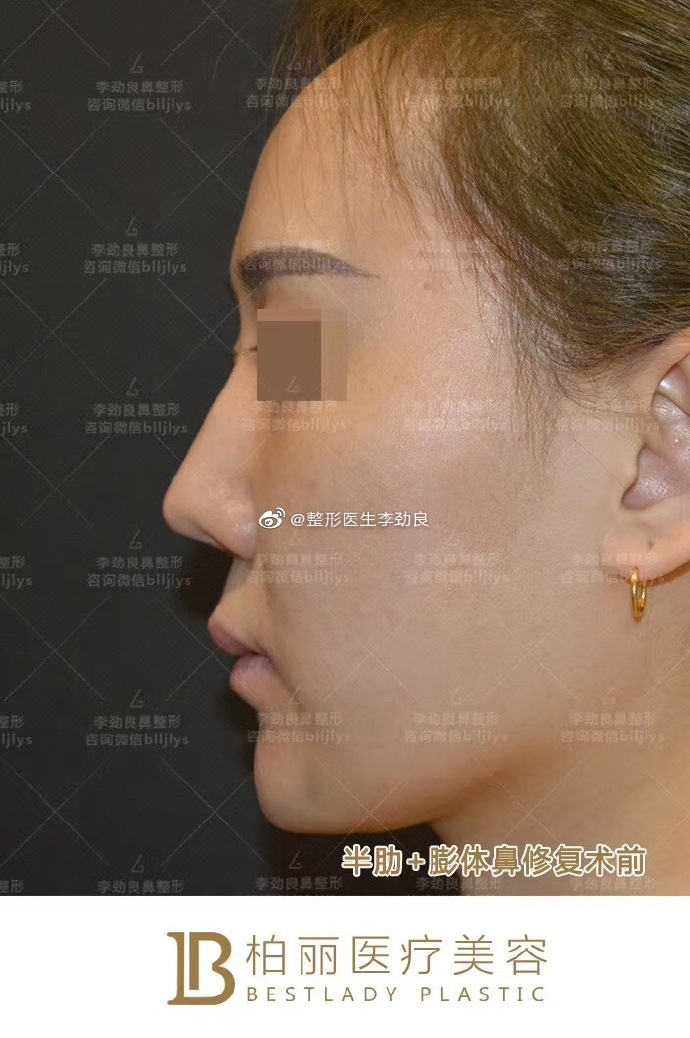 国内最好的鼻子修复专家:李劲良和刘彦军(预约案例价格)隆鼻修复谁厉害?