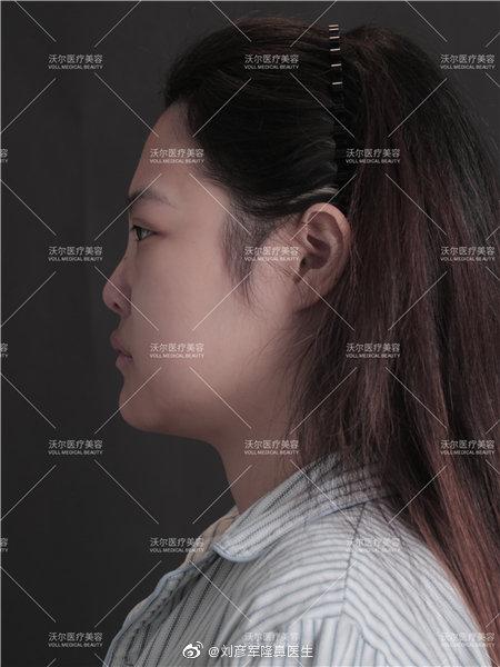 國內最好的鼻子修復專家:李勁良和劉彥軍(預約案例價格)隆鼻修復誰厲害?