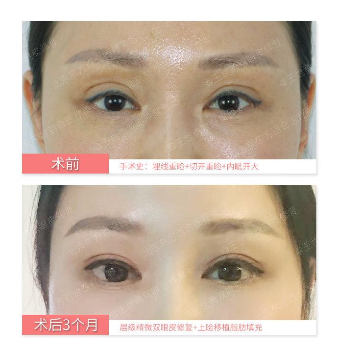 北京王世勇和靳小雷双眼皮修复谁做的好?