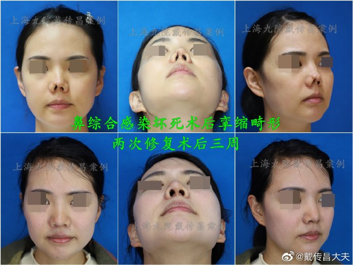 上海九院鼻子修复最出名的医生是谁?戴传昌李圣利隆鼻修复谁厉害?