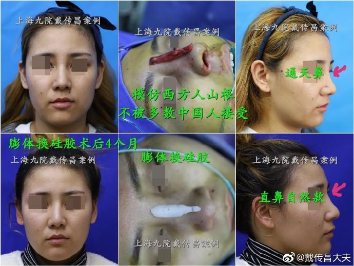 上海九院鼻子修復最出名的醫生是誰?戴傳昌李圣利隆鼻修復誰厲害?