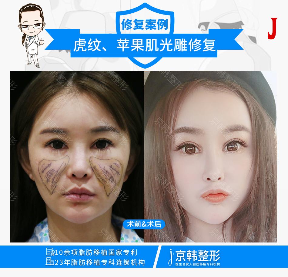 北京脂肪修复最牛医生是谁?任学会王明利乔爱军脂肪填充谁厉害?