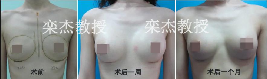 北京八大处最好的丰胸医生是谁?八大处隆胸整形医生预约