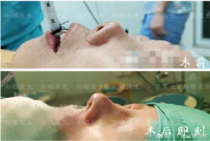 北京三甲医院做鼻综合最好的大夫是谁?三甲医院隆鼻鼻综合医生预约