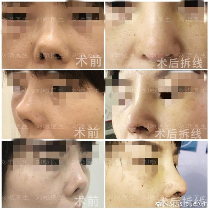 北京最厉害的隆鼻医生是谁?刘暾医生隆鼻技术怎么样?