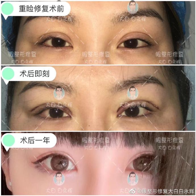 韩勋和白永辉哪个高难度修复手术(上睑下垂)做的比较好?