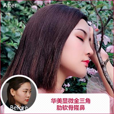 南京做鼻子最好的医生是谁?曹海峰和黄金龙鼻综合技术谁厉害?