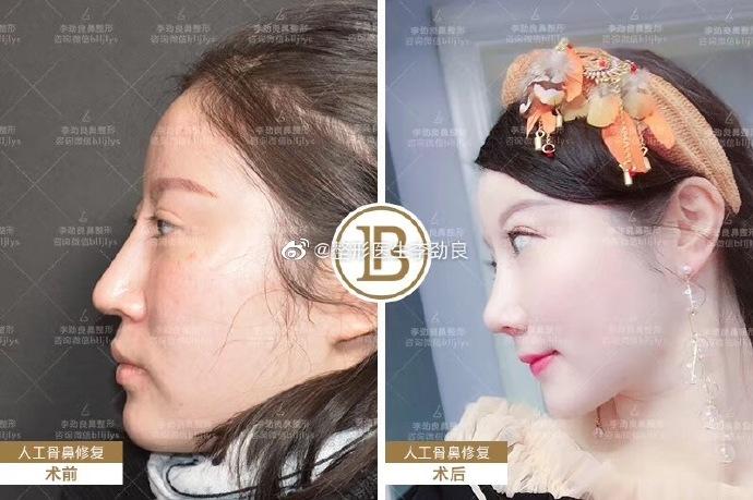 北京李长赋和李劲良哪位鼻子做的更好?